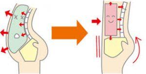腰痛 腹圧