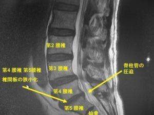 脊柱管狭窄症 7つの原因