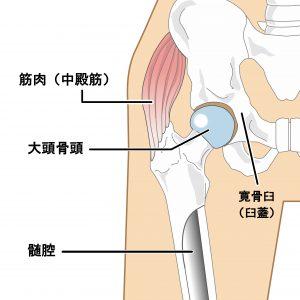 膝痛 股関節痛